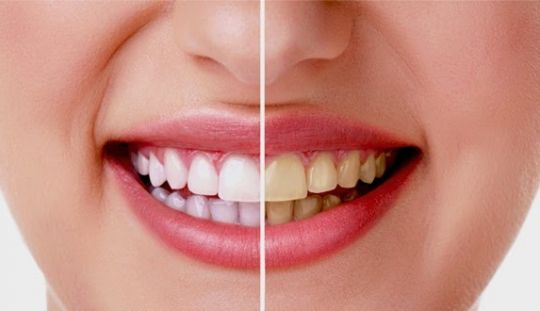 Cara Memutihkan Gigi Dengan Jeruk Nipis Dan Garam Artikel