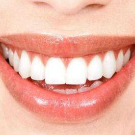sinar-uv-yang-digunakan-dalam-proses-bleaching-gigi-membahayakan-kesehartan-kulit-dan-mata