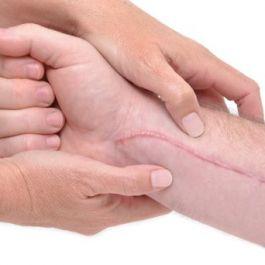 sekecil-apa-pun-luka-anda-sebaiknya-jangan-melakukan-aktivitas-olahraga-meski-dalam-intensitas-yang-kecil