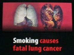 5 Menit untuk Ketahui Risiko Kanker Paru