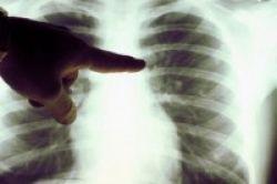 Deteksi Kanker Paru dalam Lima Menit