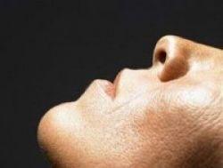Mengatasi Pendarahan di Hidung
