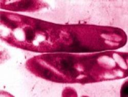 10 Fakta Penting Tuberkulosis