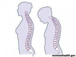 Satu dari Tiga Wanita Berisiko Osteoporosis