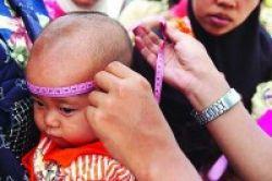 Kurang Gizi, Bayi Lebih Rentan Infeksi