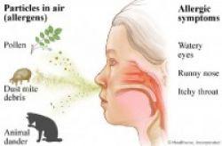 Anak Menderita Rinitis Alergi