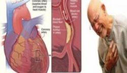 Mencegah Penyempitan Pembuluh Darah
