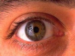 Kesehatan Mata: Sentuhan Bisa Tularkan Mata Merah