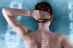 Obat Osteoporosis Tidak Sebabkan Kanker