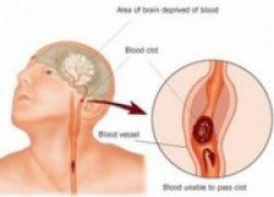 Terobosan Baru, Obat Eksperimen Stroke Manjur Cegah Otak Rusak Parah