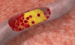 Kolesterol Diam-Diam Mengancam Nyawa