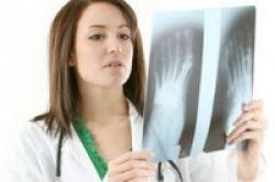 Obat Osteoporosis Perlambat Kanker Tulang