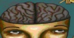 Anak Autis Punya Otak Lebih Besar