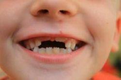 Redakan Nyeri Gigi dengan Cengkeh