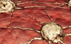 Imunoterapi, Penyembuh Kanker Masa Depan