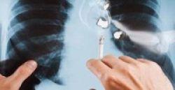1 dari 5 Pasien Kanker Paru Bukan Perokok