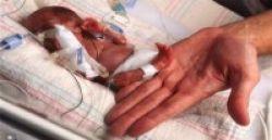 Bayi Terkecil di Dunia Bisa Tumbuh Sehat