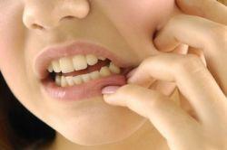 Pengobatan Sederhana untuk Sakit Gigi