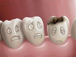 Hindari! Cara Sikat Gigi Keliru Sebabkan Gigi Berlubang