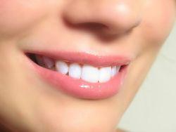 8 Makanan Ini Mampu Memutihkan Gigi Tanpa Sikat Gigi, Loh!