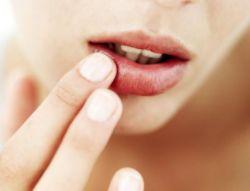Tips Mencegah Bibir Kering Saat Berpuasa