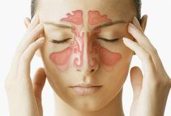 Mengenal Gejala dan Pengobatan Penyakit Sinusitis