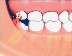 Apakah Setiap Orang Pasti Akan Tumbuh Gigi Geraham Bungsu?