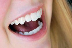Bahayakah Gigi Kelinci Palsu?