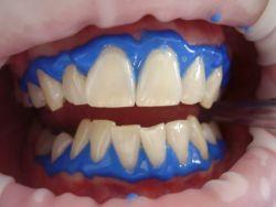 Yang Patut Anda Ketahui Mengenai Hal Pemutihan Gigi (Dental Bleaching)