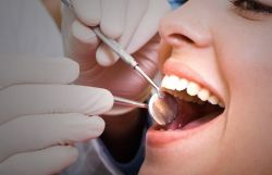 Inilah Penyebab Mengapa Gigi Bisa Goyang?