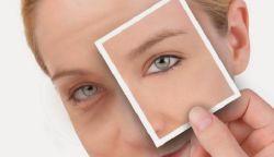 Cara Mengatasi Kantung Mata yang Kendur dengan Cepat