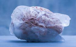 Ini Penjelasan Ilmiah dan Penanganan Brain Freeze Saat Konsumsi Minuman Dingin