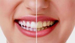 Cara Memutihkan Gigi dengan Jeruk Nipis dan Garam