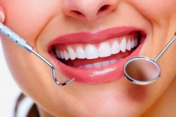 Seri Artikel Dental Waspadai Pikiran Anda: Mitos yang Menyertai Pembersihan Karang Gigi