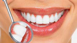 Cara Menjaga dan Merawat Kesehatan Mulut dan Gigi