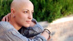 Ini Alasan Mengapa Kemoterapi Bisa Menyebabkan Kebotakan